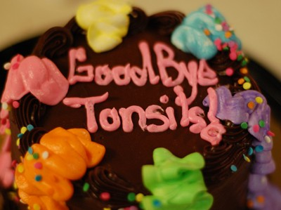 tonsils.jpg
